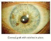 Corneal graft with stitches in place